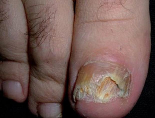 onicomicosi, funghi unghie