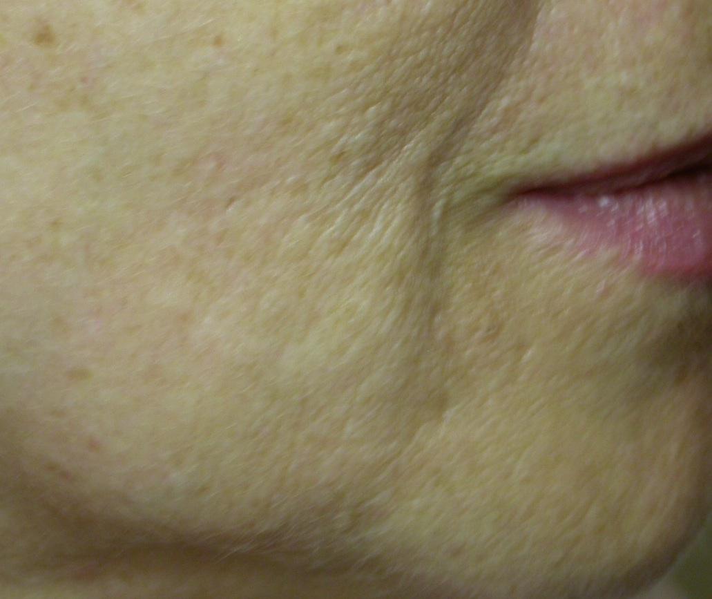 biostimolazione-roma-dopo-il-trattamento